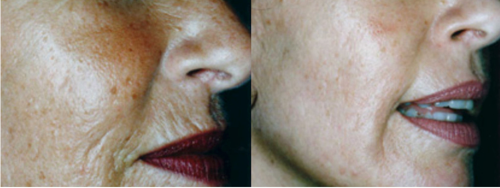 MICRONEEDLING XTREMEBEAUTY 2.png