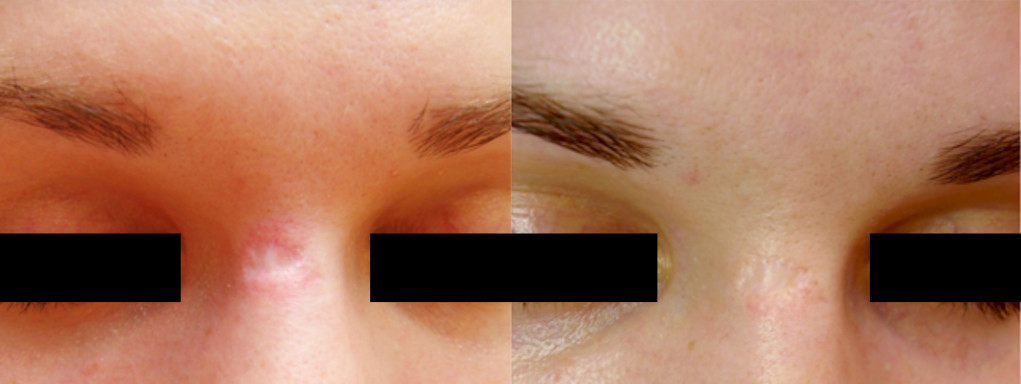 MICRONEEDLING XTREMEBEAUTY 7.png