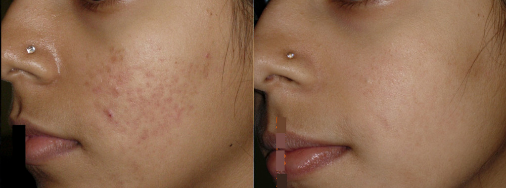MICRONEEDLING XTREMEBEAUTY 6.png