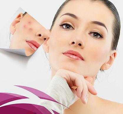 tratamento facial curitiba