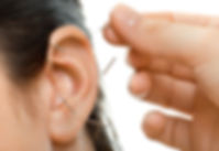 Ear-Acupuncture.jpg