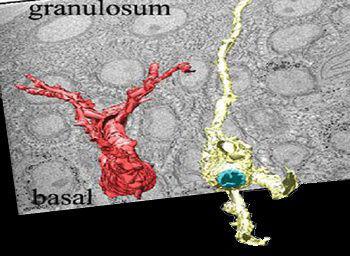 Spectra-Melasma-Melanocyte-Before3.jpg