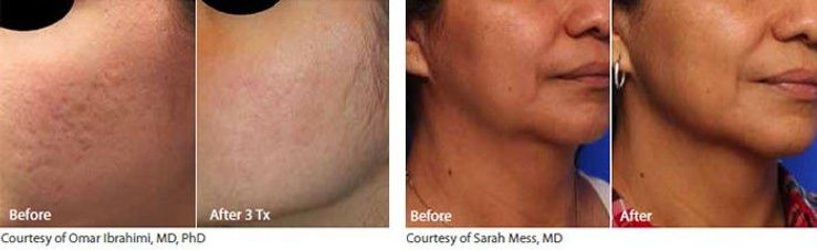 Infini-Acne-Scars-Wrinkles-Texture-Neck-