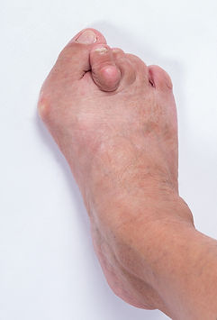 Stage 4 hallux abducto valgus (bunion)