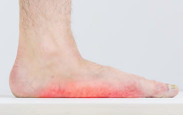 Example of Athlete's foot (tinea pedis), sole and the sides of the feet can become red, swollen, and itchy