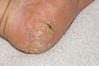 Cracked skin (fissure) of the heel
