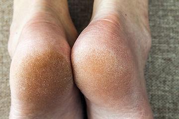 Dry skin on heels of both feet