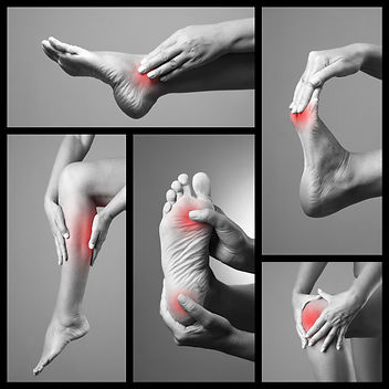 Locations of pain and discomfort in the lower limb (foot, ankle and leg). Open Podiatry