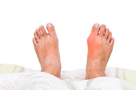 Gout flare up of the right big toe joint with swelling, redness, and pain