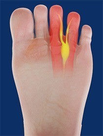 Area where Morton's neuroma can occur in the foot