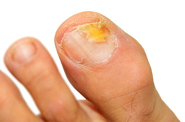 Fungal nail infection shown by infection of the big toe nail being yellow, thick and crumbly