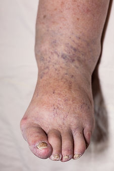 Swollen foot, ankle and leg (peripheral oedema)