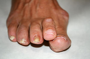 Hallux rigidus of the right foot