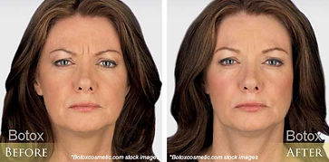 before-after-botox-18.jpg