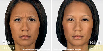 before-after-botox-11.jpg