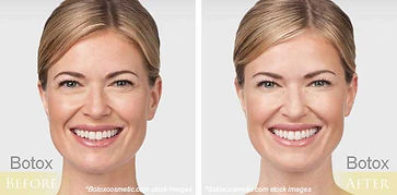 before-after-botox-08.jpg