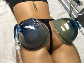 Butt Vacuum Therapy