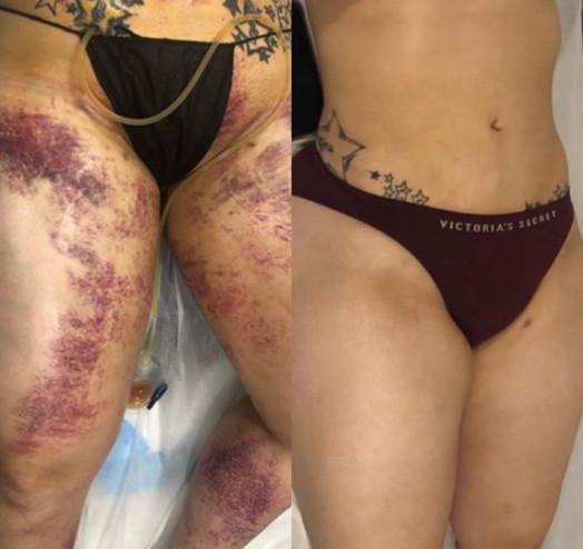 Post Surgery Massage.jpg