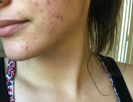 Pre-Accutane: Pros, Cons & Committing to Abstinence