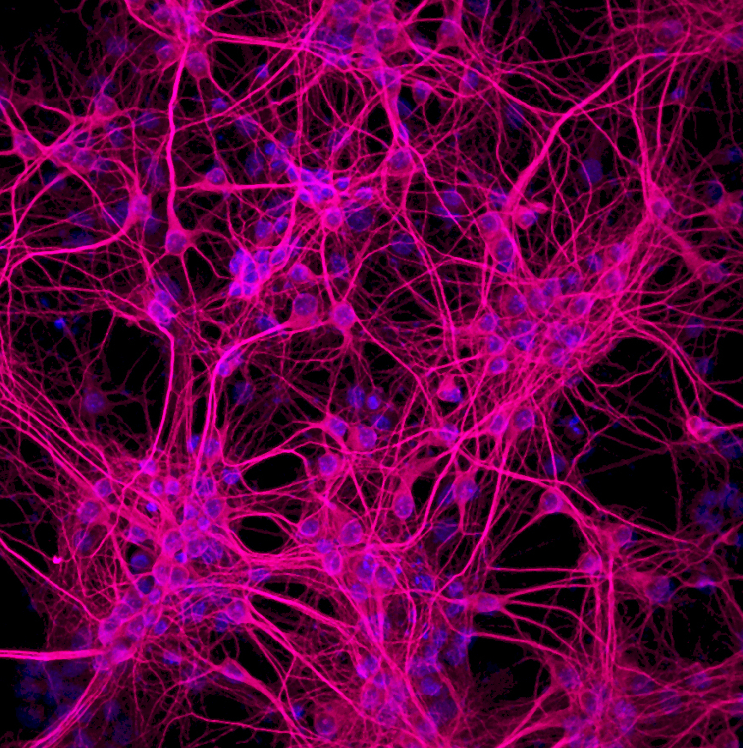Neurons In Vitro