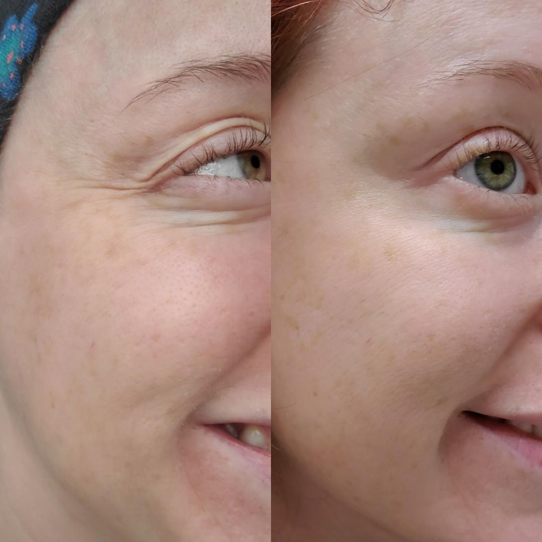 Crows Feet & Brow Lift
