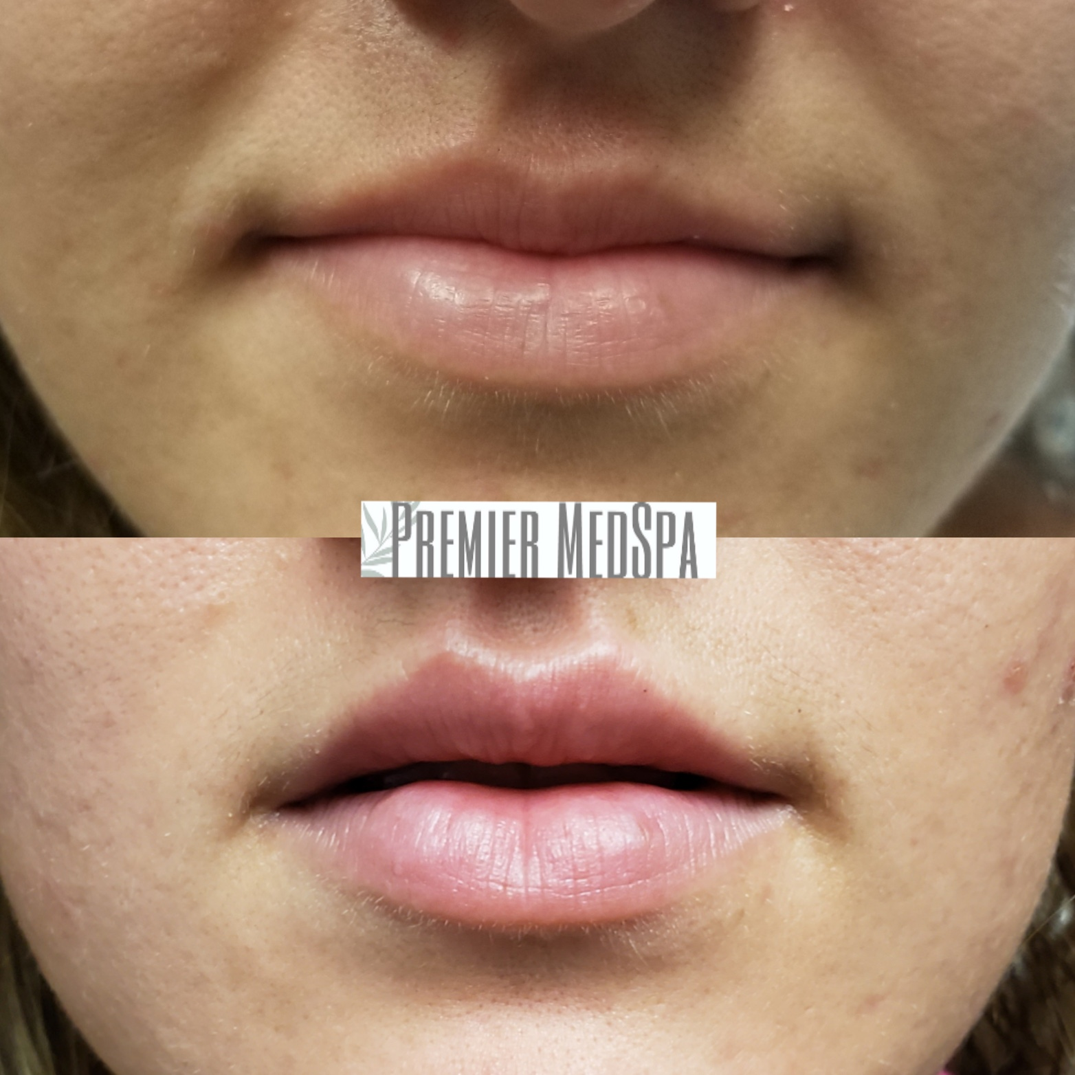 Correcting Natural Asymmetry