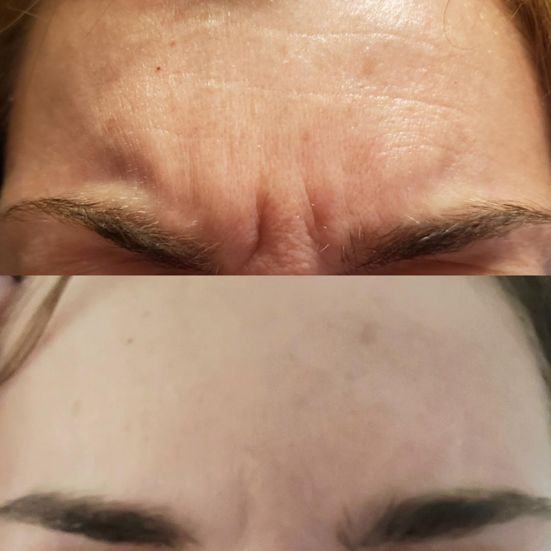 Botox Glabella Animated