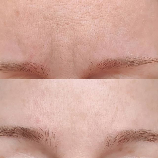 Botox Glabella