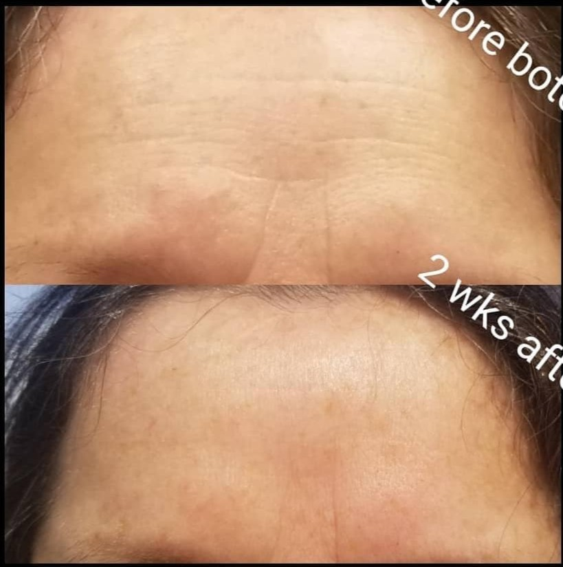 Botox Glabella & Forehead