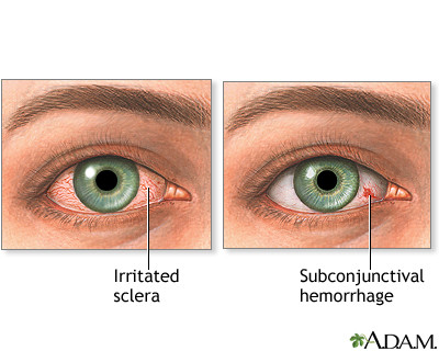 Diferencia entre ojo irritado y hemorragia del ojo