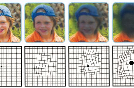 Diagnóstico y Tratamiento de la degeneración macular
