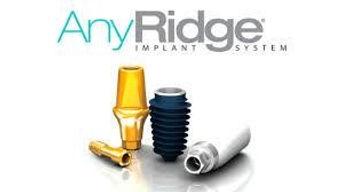 имплантология, имплантаты any ridge