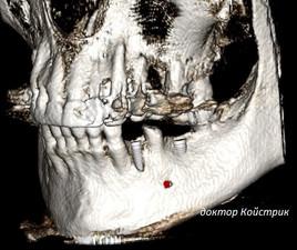 направленная регенерация костной ткани