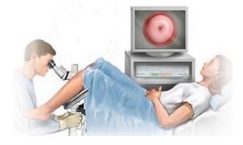 Image of colposcopy procedure.