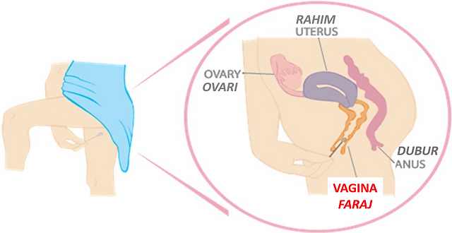 female reproductive system showing insertio of self-swab in vagina