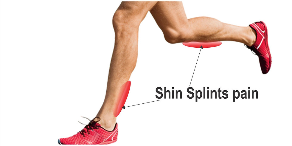 Recognizing and Self Treating Shin Splints!