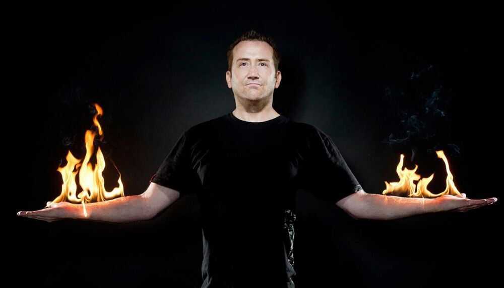 AF Skin Burn Barry Holmes