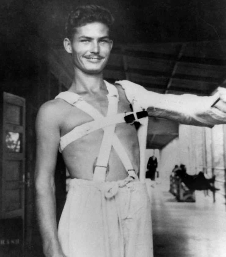 Doss with his arm in plaster at a military hospital