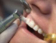 Polishing teeth.jpg