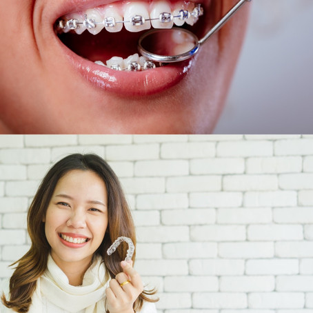 Braces vs. Aligners - Which Is the Right Choice?