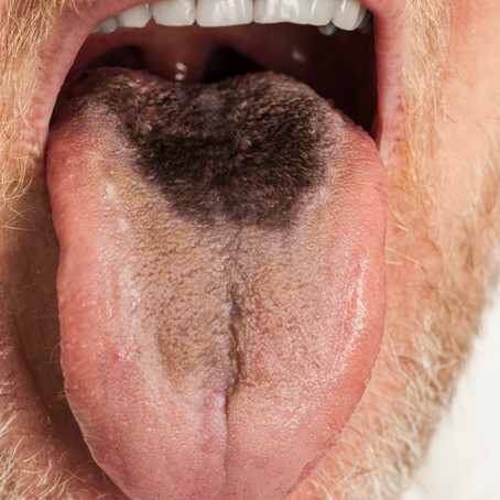 Is your tongue clean?
