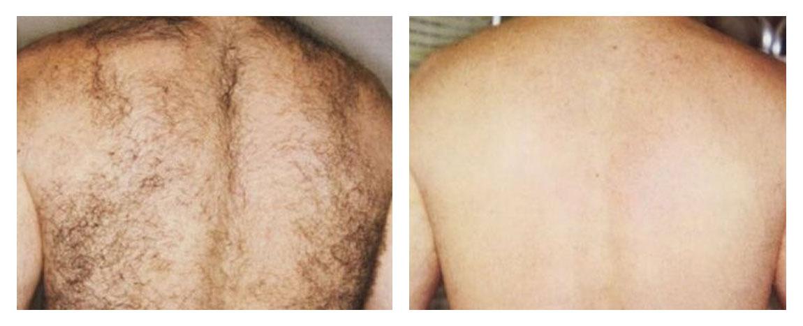 Laser - pred a po 2