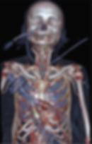 UniRad Tomography 128