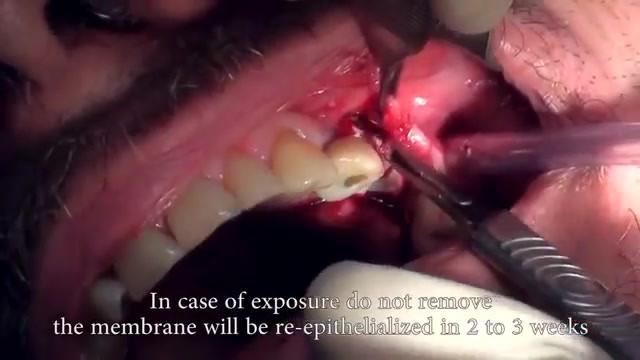 Tisseos Membrane pour une ROG pré-implantaire