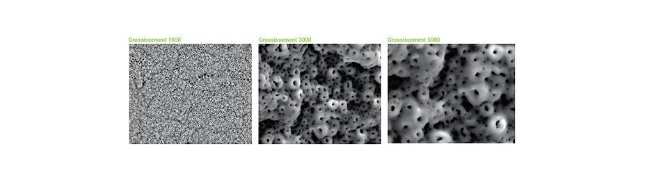 Surface implants.jpg