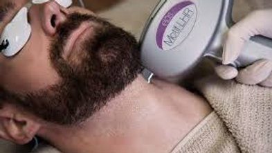 Beard with Neck SHR - One off