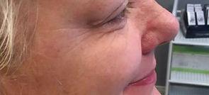 Botox_eyes_after3.jpg