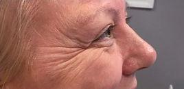 Botox_eyes_before3.jpg