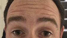 Botox_forehead_before1.jpg