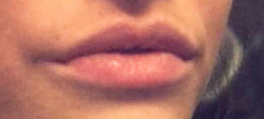 Filler_lips_after3.jpg